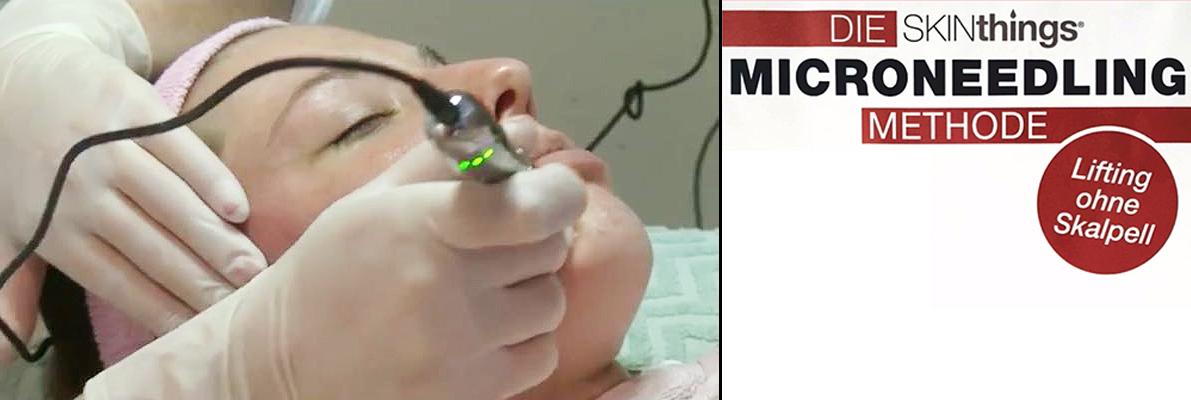 Kosmetisches Micro-Needling